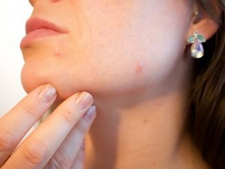laserové dermatologie